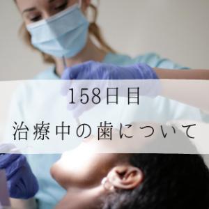 インビザライン158日目 治療中の歯について (11/22枚)