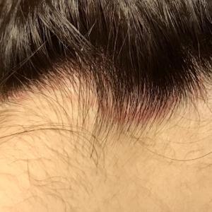 脂漏性皮膚炎の原因と治療【抗真菌薬配合のシャンプーがおすすめ】
