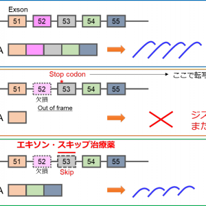 デュシェンヌ型筋ジストロフィー患者を対象としたエキソン・スキップ治療薬(NS-065/NCNP-01)の全身投与の試験