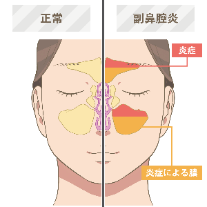 好酸球侵襲性副鼻腔炎の手術と鼻うがいのすすめ