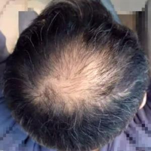 AGA治療【1か月目】これが噂の初期脱毛?