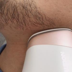 【髭脱毛をしてみた】自宅で男性も使える脱毛器の効果を紹介します!