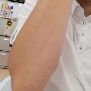 腕にエピレタを使用、その後の経過報告