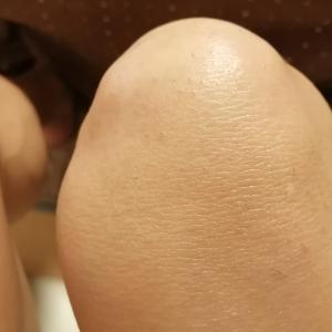 エピレタ脱毛、膝で苦戦中