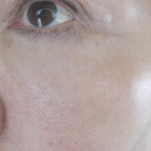 年齢に反比例する「見せ肌」