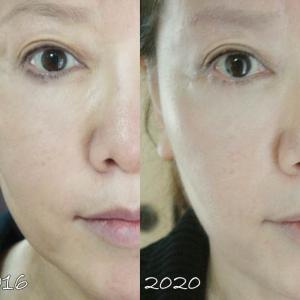 6年前と現在:美容医療でトラブるよりも安全で確実な方法