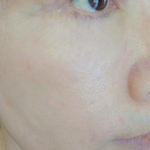集中月間 :一カ月経過した私の肌