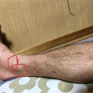 後脛骨筋腱炎(+シンスプリント)