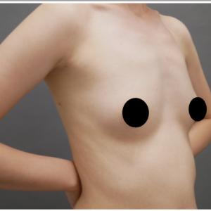 『乳房拡張器』を併用したコンデンスリッチ豊胸・30代女性・BMI 16