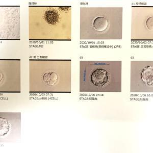 【妊活D3】移植周期に突入