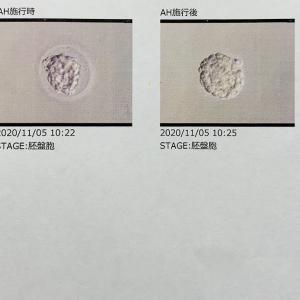 【妊活D19】胚盤胞を移植してきました
