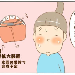 歯科矯正(痛いか?痛くないか?)
