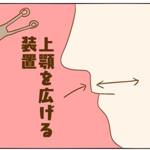 歯科矯正(歯科矯正4回目)
