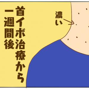 アラフォーのなんちゃって美容(首イボ③)
