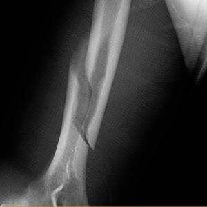 上腕骨骨幹部骨折(投球骨折)