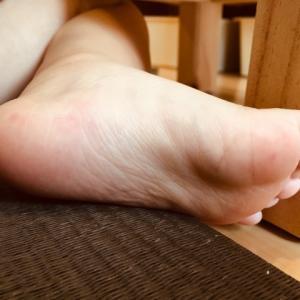 手足口病は大人も感染する