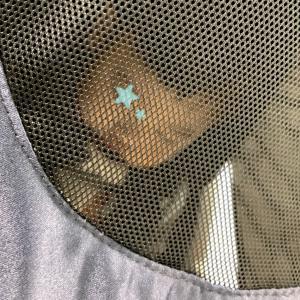 1歳2ヶ月★小頭症精査(CT/眼科)がドタバタ過ぎた件