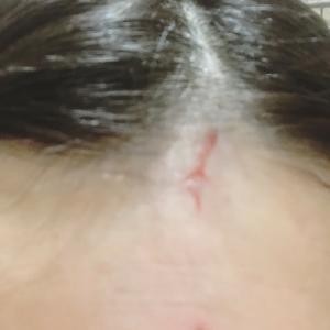 怪我をした時のクレイの使い方