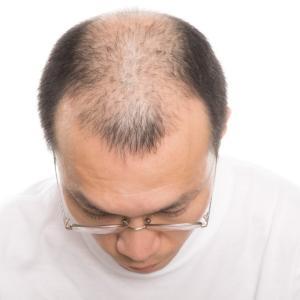 TOMクリニックが最新の毛髪再生治療PRP療法を導入