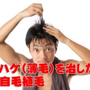 本気でハゲ(薄毛)を治したいなら堅実な自毛植毛