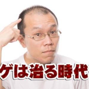 ハゲ(薄毛)は治る時代!効果の高い治療法で悩み解消