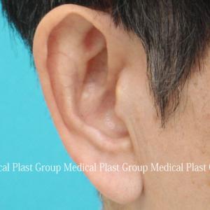 耳たぶ縮小(耳垂縮小)(耳垂形成)手術 術後1週間のご紹介  【プラストクリニック東京】