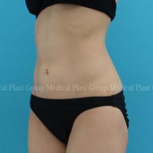 脂肪吸引後でもリポセル治療でさらに美しく♪ 【プラストクリニック東京】