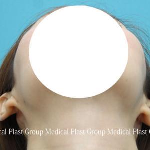 左右差のあるたち耳を手術で治しました❣ 術後1ヶ月 【プラストクリニック東京】