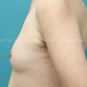 背中を丸めて歩くしかなかった 女性化乳房症40代男性 術後2日目~1か月経過紹介 【プラストクリニック東京】