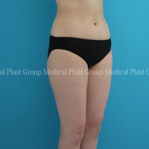 40代から気になる下半身をスマートに♡リポセル治療 腰・下腹・太もも症例 【プラストクリニック東京】