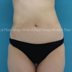 骨盤の歪みによるお腹の脂肪もお腹専用脂肪溶解注射&リポセルで♪ 【プラストクリニック東京】