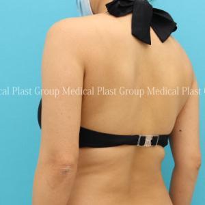 16日間で背中を若返らせる⁉ リポセル背中症例 40代 【プラストクリニック東京】