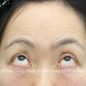 皮膚を切らない眼瞼下垂修正手術 術前⇒術後1年⇒術後4年8か月 【プラストクリニック東京】