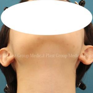 「子供の頃に指摘されて….」 たち耳修正手術 20代女性 術後6ヶ月 【プラストクリニック東京】
