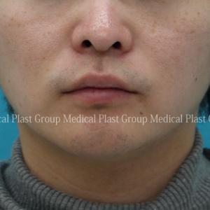 男性も増えてます❣ 貴族手術=鼻翼基部プロテーゼ 手術直後と9日目をご紹介♪ 【プラストクリニック東京】