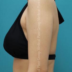 二の腕痩せ 脂肪溶解注射とリポセル併用症例♪ 【プラストクリニック東京】