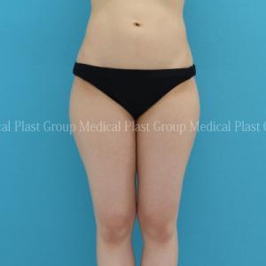 先日に続いて、リポセル下腹部+太もも症例 今回は20代 【プラストクリニック東京】