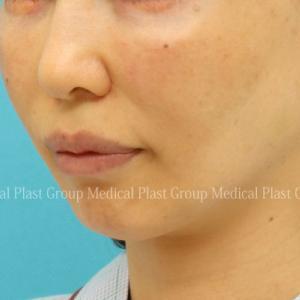 貴族手術=鼻翼基部(びよくきぶ)プロテーゼ 手術後17日目の腫れは?【プラストクリニック東京】