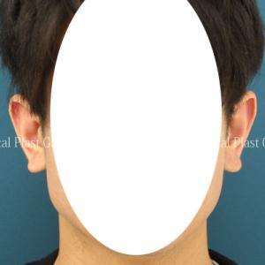 すそが広がった耳たぶを、スマートに治しました♡ 耳垂形成術 9日目 【プラストクリニック東京】