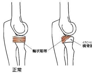 子供の肘の痛みの原因となる「肘内障」について整形外科医が解説してみました