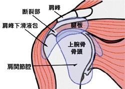 肩の痛みの原因となる「腱板断裂」について整形外科医が解説してみました