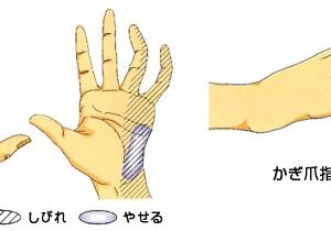 手のしびれの原因となる「肘部管症候群」について整形外科医が解説してみました