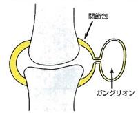 手首や指の痛みの原因となる「ガングリオン」について整形外科医が解説してみました