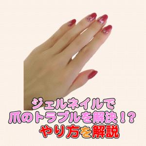 【深爪ちび爪ヒビ割れ】ジェルネイルで解決できる爪のトラブルと直し方を解説