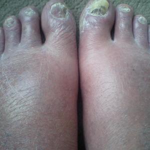 これが現在の足の浮腫み、ピーク時は甲が破裂