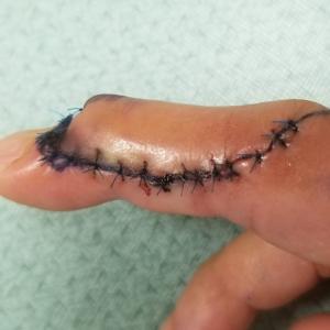 指、その後の状態。