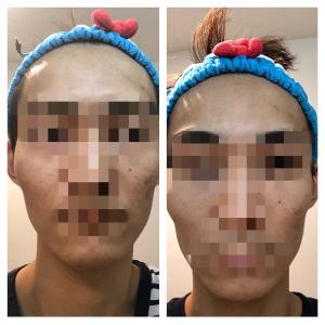 美容皮膚科でニキビ跡を治すにはいくらかかるのか〜体当たりレポート〜⑦