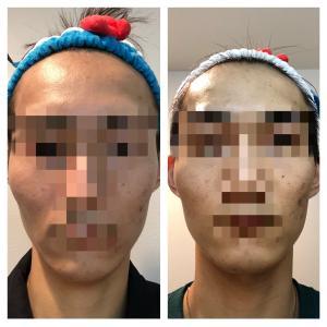 美容皮膚科でニキビ跡を治すにはいくらかかるのか〜体当たりレポート〜⑤