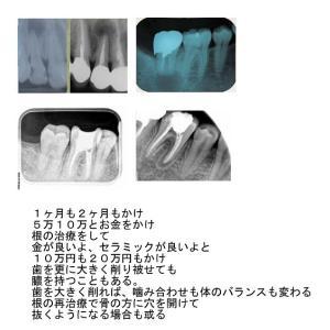 歯と身体、心を大切に