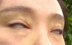 ずさんな二重瞼整形手術で常に「白目」 目が閉じなくなった女性